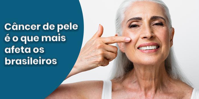 Câncer de pele é o que mais afeta os brasileiros